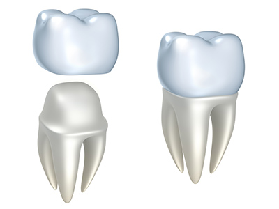 Dental Crowns at Prins Dental